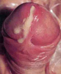 stan zapalny cewki moczowej