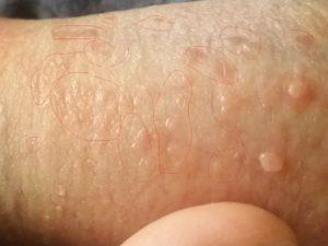 Kiła - grudki na ręce
