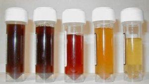 krew w moczu badania