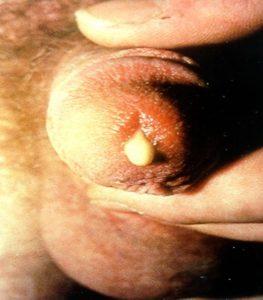 rzeżączka wydzielina z penisa