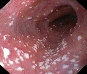 waginoza w pochwie